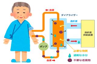 血液透析.png